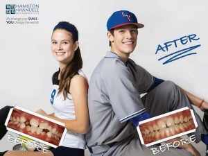 two teen baseball and softball players' smiles before and after treatment
