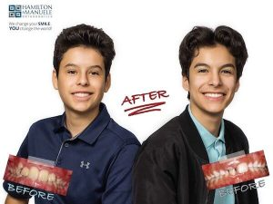 young brothers before and after treatment