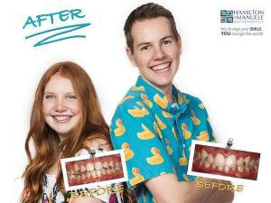brother and sister's smile before and after treatment