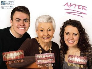 elderly woman and her two grandchildren before and after treatment