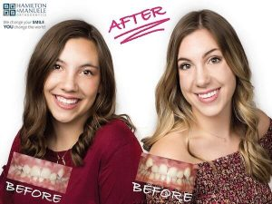 mother and daughter before and after treatment