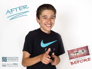 young male patient's smile before and after treatment